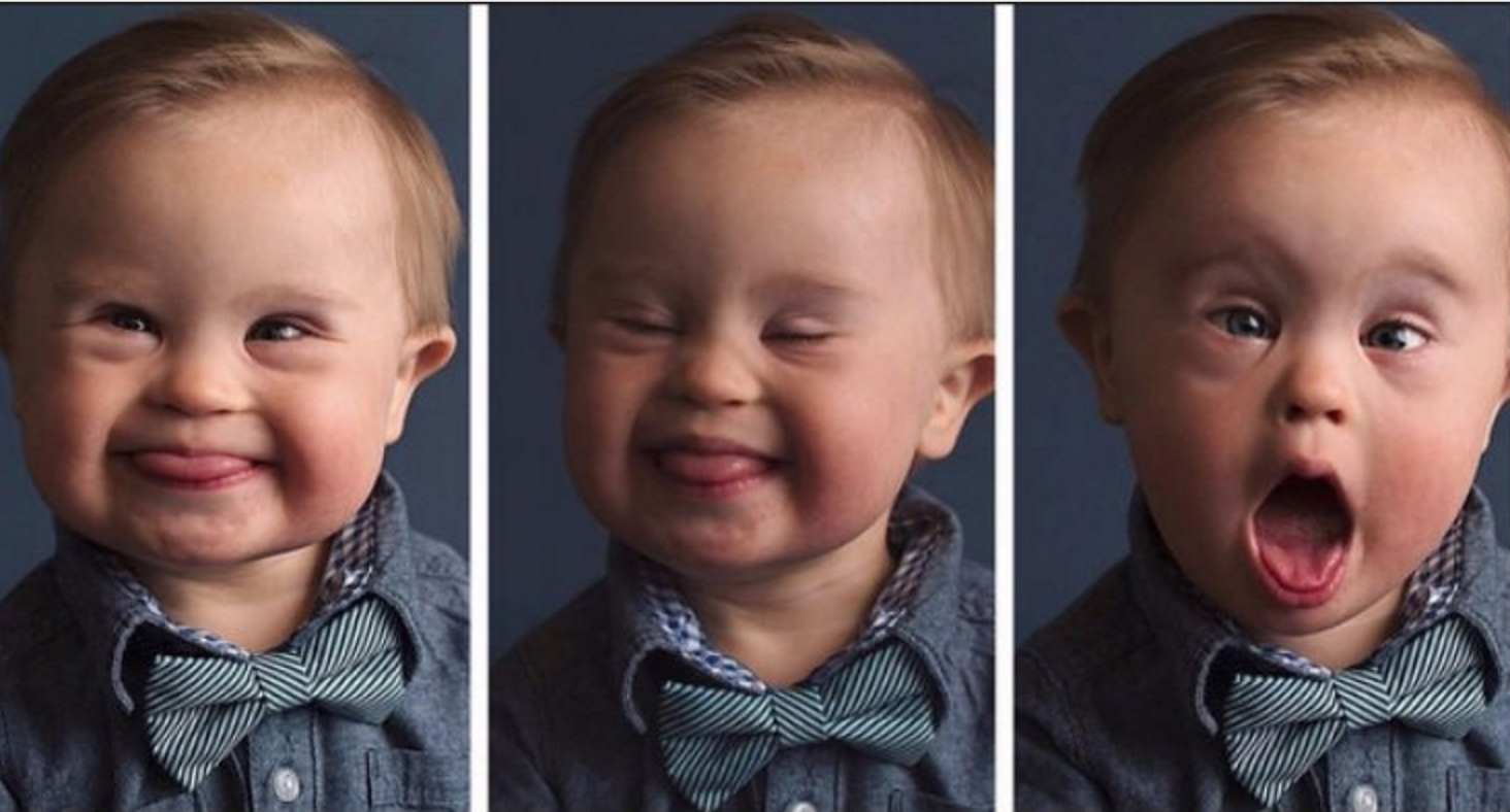 babyasher.png - Boy With Down Syndrome Became A Model After Getting Rejected By Clothes Magazine
