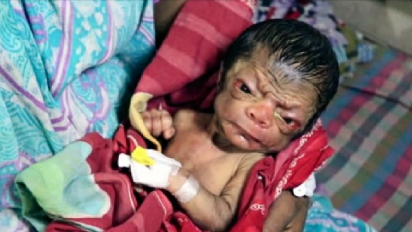 benjamin button baby feature 1 412x232.png - Benjamin Button Case: Newborn Baby Looked Like An 80-Year-Old Man At Birth
