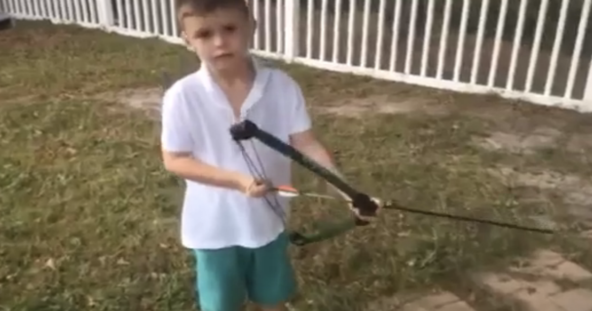 bow and arrow.png - This Kid Showed The Most Epic Way To Pull Out A Tooth - With A Bow And An Arrow!