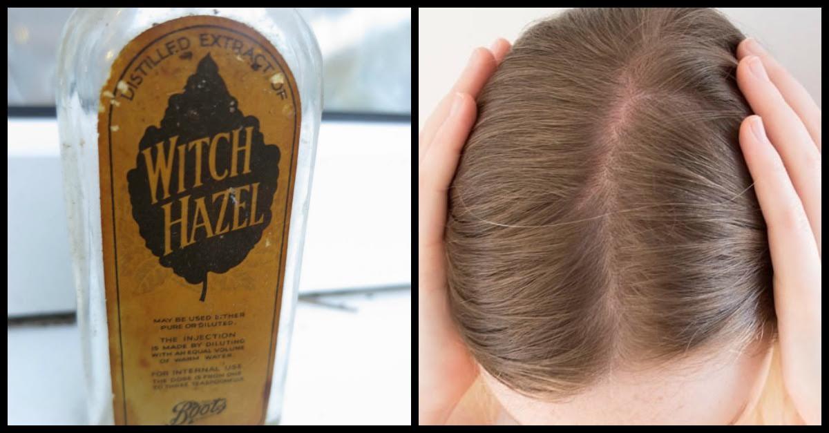 w hazel.jpeg - Numerous Benefits And Uses Of Witch Hazel