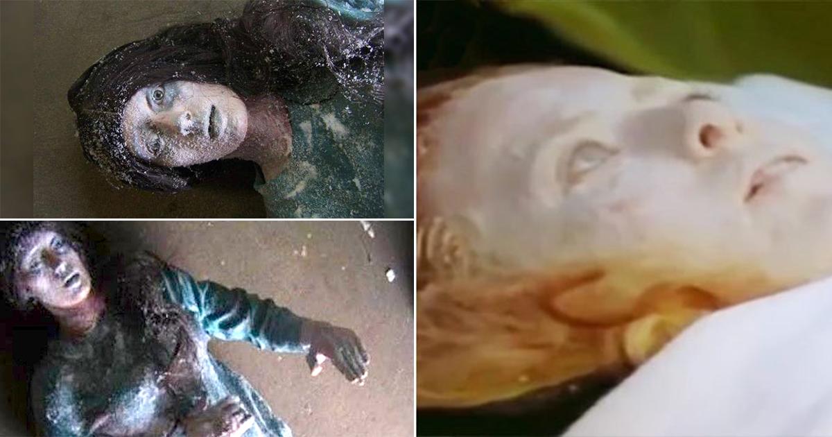 thumbnail 27.jpg - '영하 35도'에서 6시간 방치 후 병원으로 이송된 여성... 그녀에게 일어난 '미스테리'