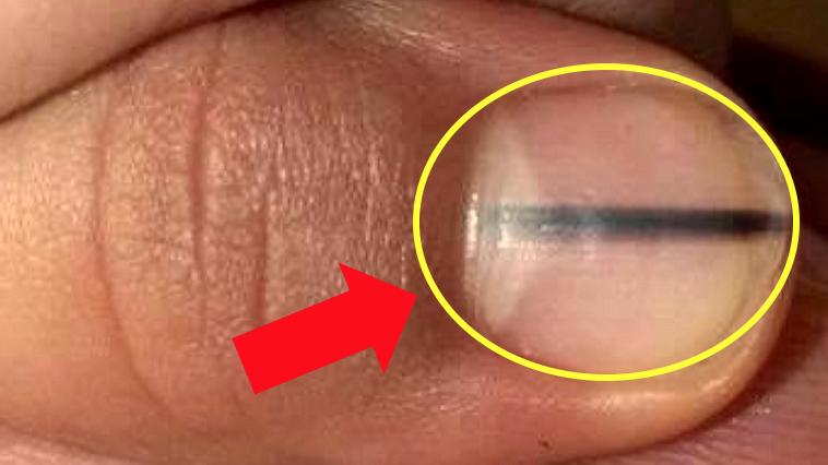 e18489e185b3e1848fe185b3e18485e185b5e186abe18489e185a3e186ba 2017 09 04 10 13 56 am.png - 爪に「黒い線」があったら「この疾患」なのかもしれない?
