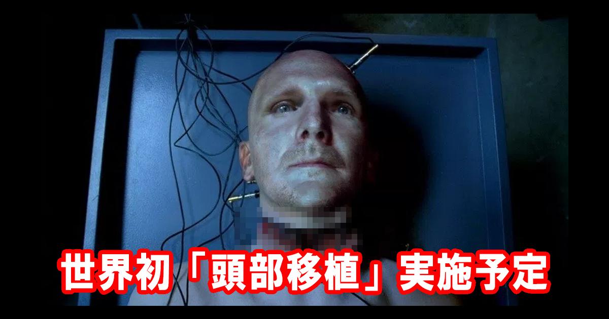 世界初!「頭部移植」中国で実地...
