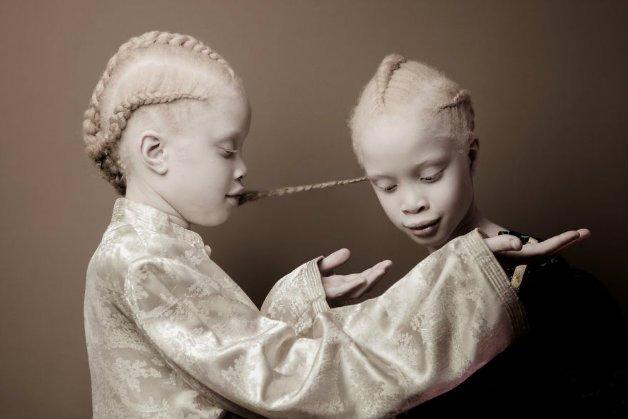 img 59ae393aa98a4.png - Conheça as gêmeas albinas brasileiras que estão arrasando no mundo da moda