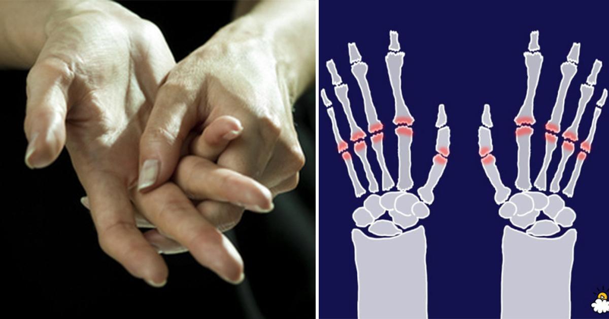 thumbnail 2.jpg - '뚝뚝' 손가락 마디 꺾기가 '관절 건강'에 미치는 영향