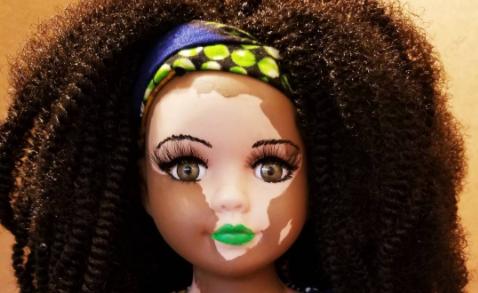 thumbnail 2.png - Artista cria bonecas com vitiligo para pessoas com essa rara condição de pele