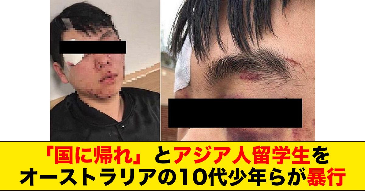 88 91.jpg - 「国に帰れ」とアジア人留学生をオーストラリアの10代少年らが暴行