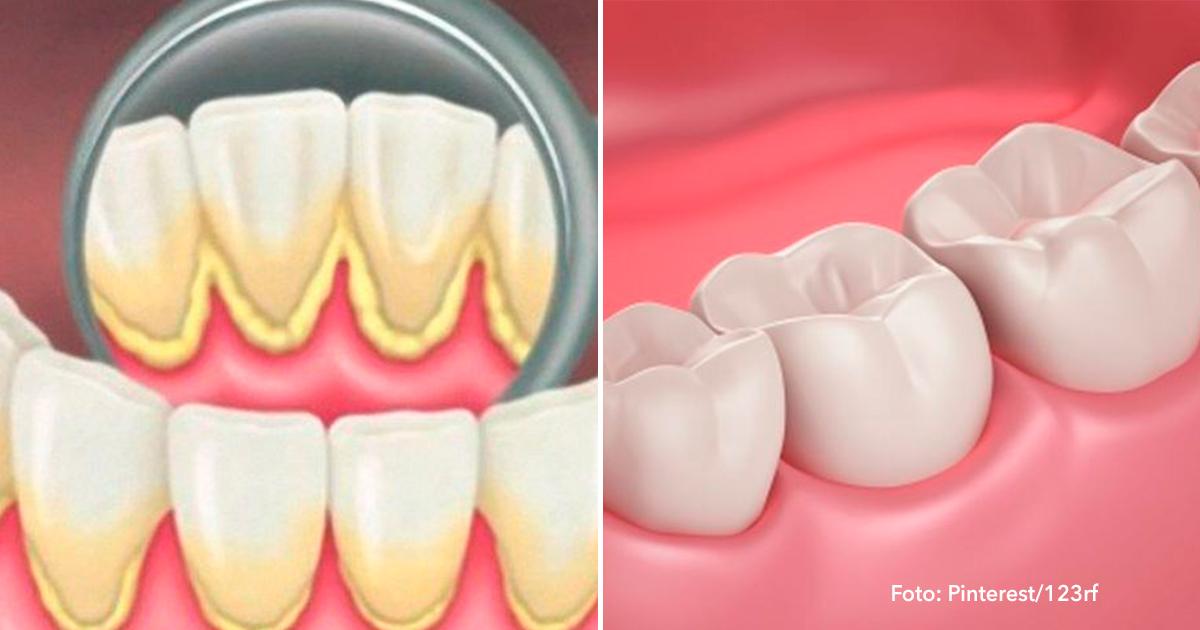 cober.jpg - Você pode impedir a placa dentária e o tártaro com estes 2 simples remédios caseiros