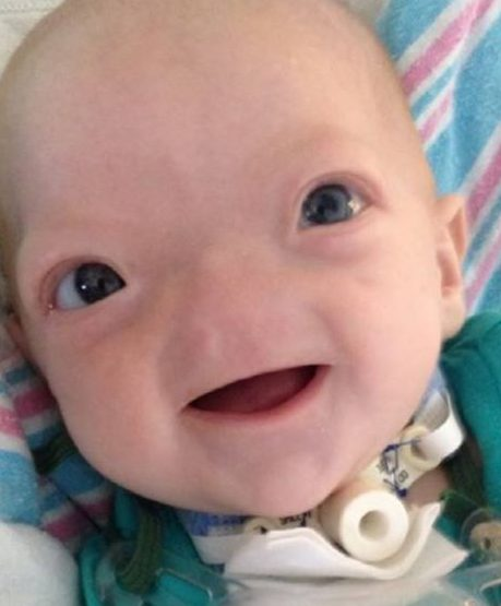 eli16 1 e1511242418881.jpg - The Baby Born Without A Nose Passed Away At Age 2