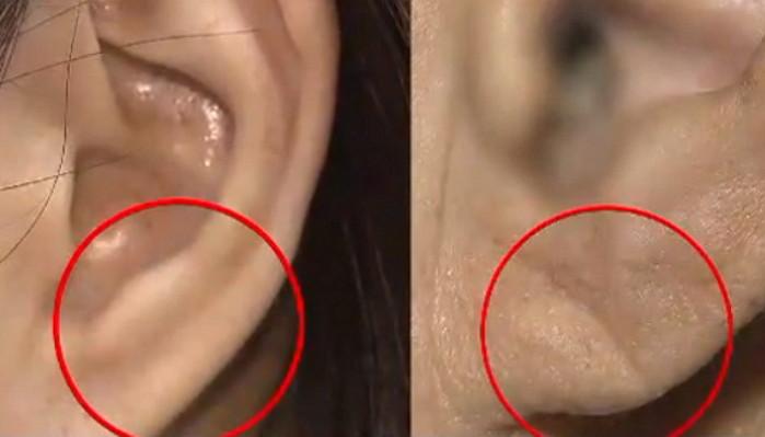 img 5a17037218ec3.png - 「耳たぶ」にしわがある場合は必ず病院行かなければならない理由