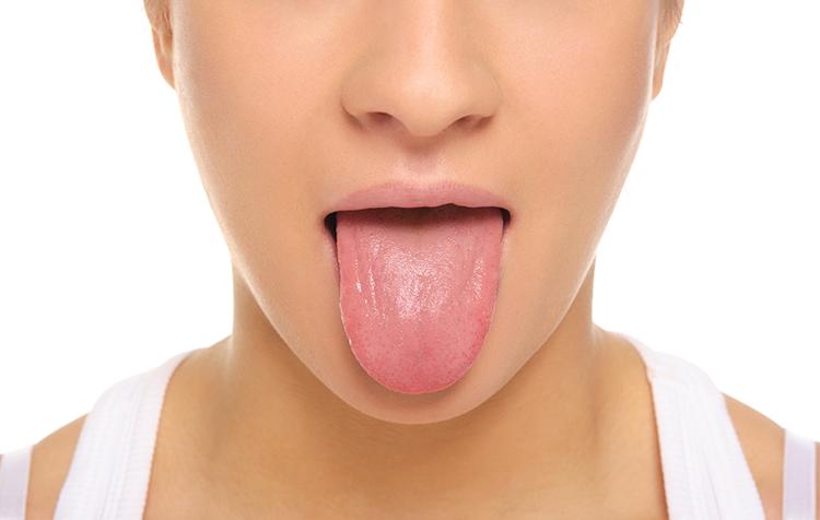 img 5a2f7f36c4bf4.png - 健康のバロメーター!舌の色が白くなっていたら不調のサイン