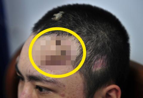 img 5a37be21c321a.png - 交通事故で鼻を失った男性、結局は最後の方法を選んだ