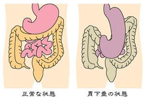 胃下垂에 대한 이미지 검색결과
