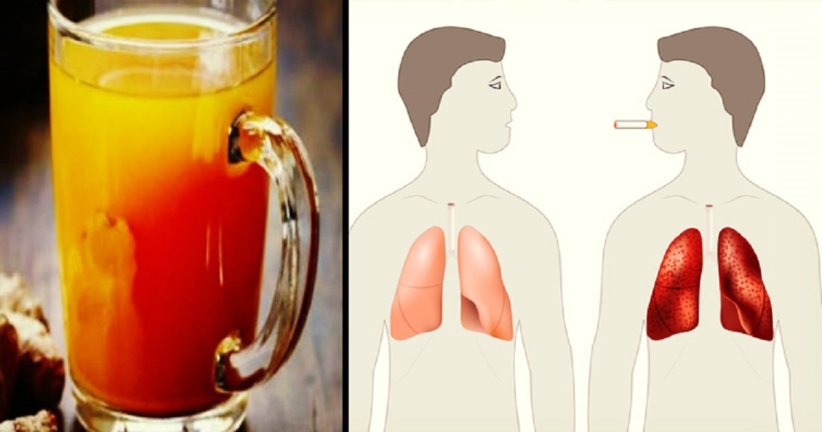 ogi16671.jpg - Recipe For Cleansing Drink That May Help Active Smokers Or Ex-Smokers Relieve Their Lungs