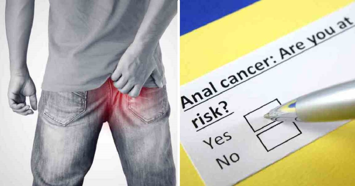 analcancer2 1.jpg - Six Early Anal Cancer Warning Signs That People Are Embarrassed To Talk About