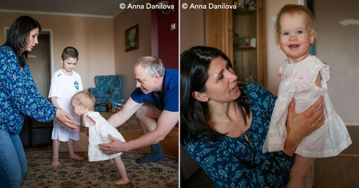 cover 113.jpg - Bebê deixada em orfanato pelos pais por conta de deformidade, é adotada por casal de estrangeiros