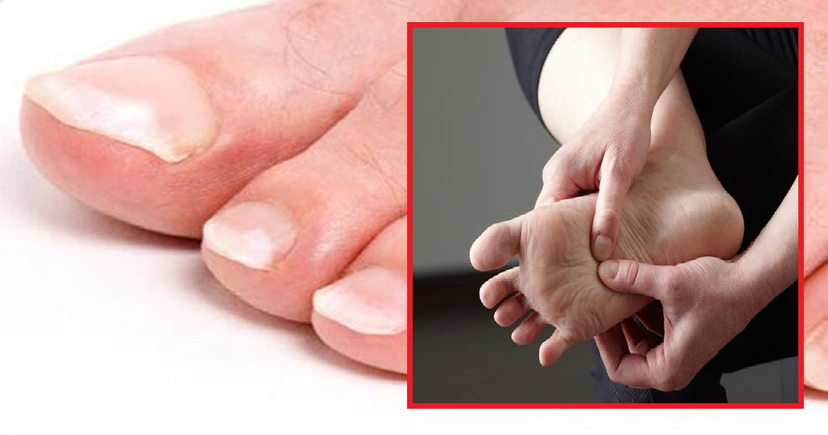 feet3 1.jpg - 10 Common Feet Signs That May Indicate Underlying Health Problems