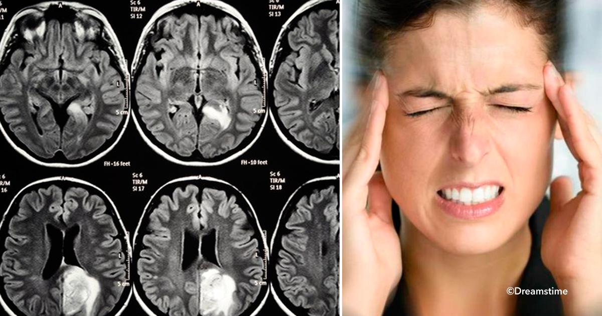 ver5.png - Tumor cerebral, 8 sintomas que alertam o corpo