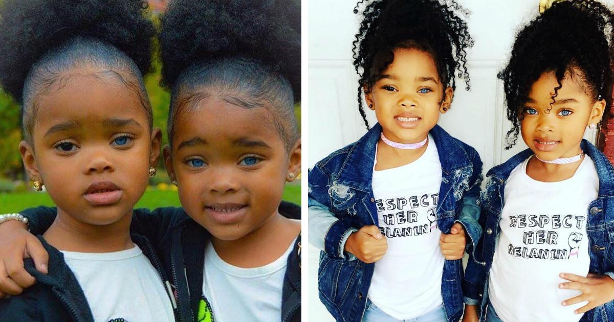 144.jpg - Estas gêmeas chocaram as redes sociais por sua beleza singular