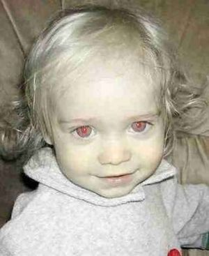 アルビノ 赤ちゃん에 대한 이미지 검색결과
