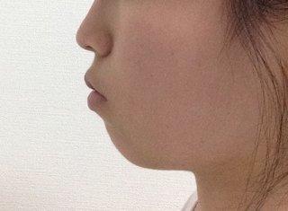 アデノイド 顔貌 たらこ唇에 대한 이미지 검색결과