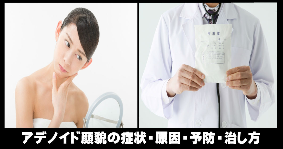 e784a1e9a18c 40.jpg - 知らなかった!アデノイド顔貌の症状・予防・原因・治し方のご紹介!