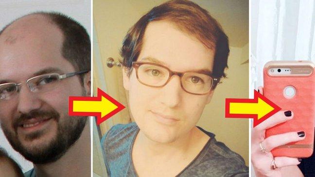 32415 1.jpg - 「薄毛」のせいで「女性ホルモン」投与した男性の不思議な変化【写真8枚】
