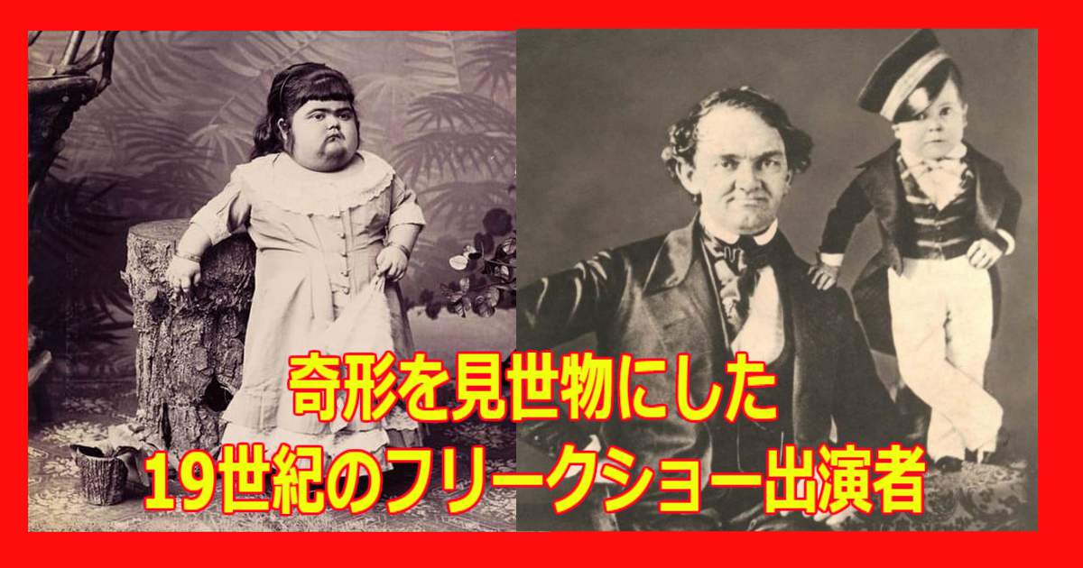 aa 20.jpg - 奇形を見世物にした19世紀のフリークショー出演者まとめ