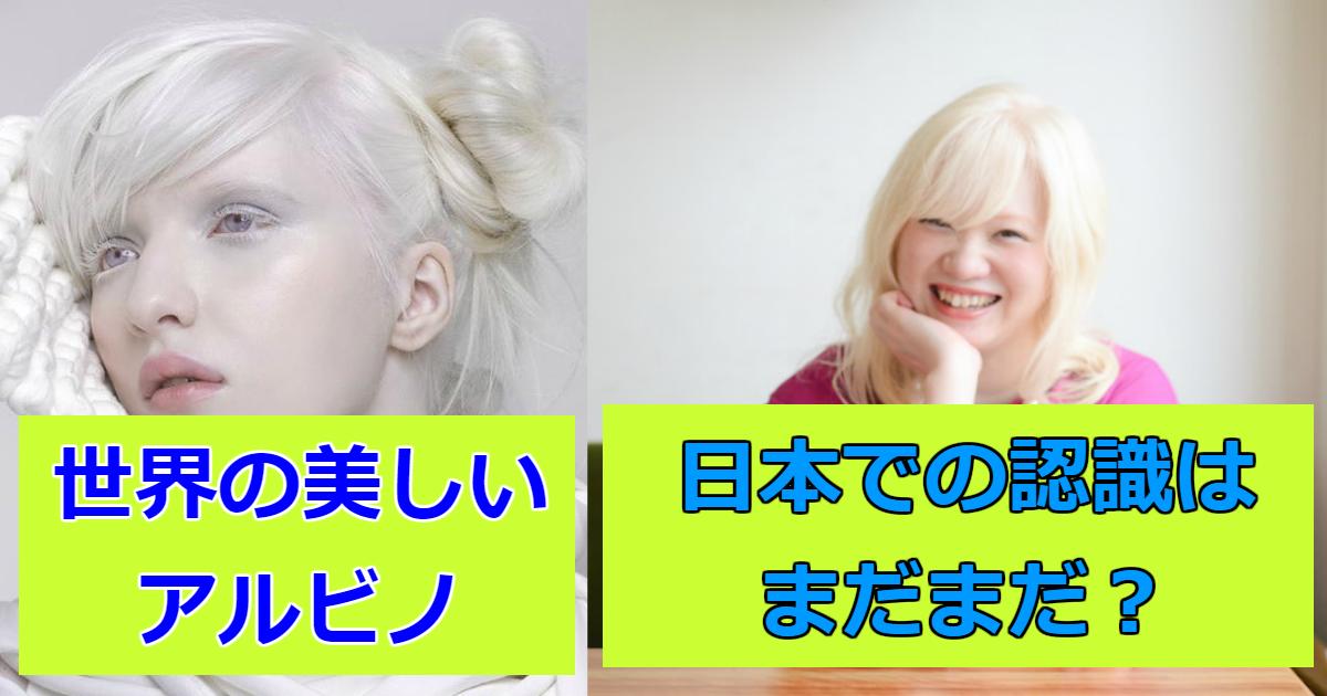 arubino.png - 世界中で活躍するアルビノのモデル!日本人まとめ