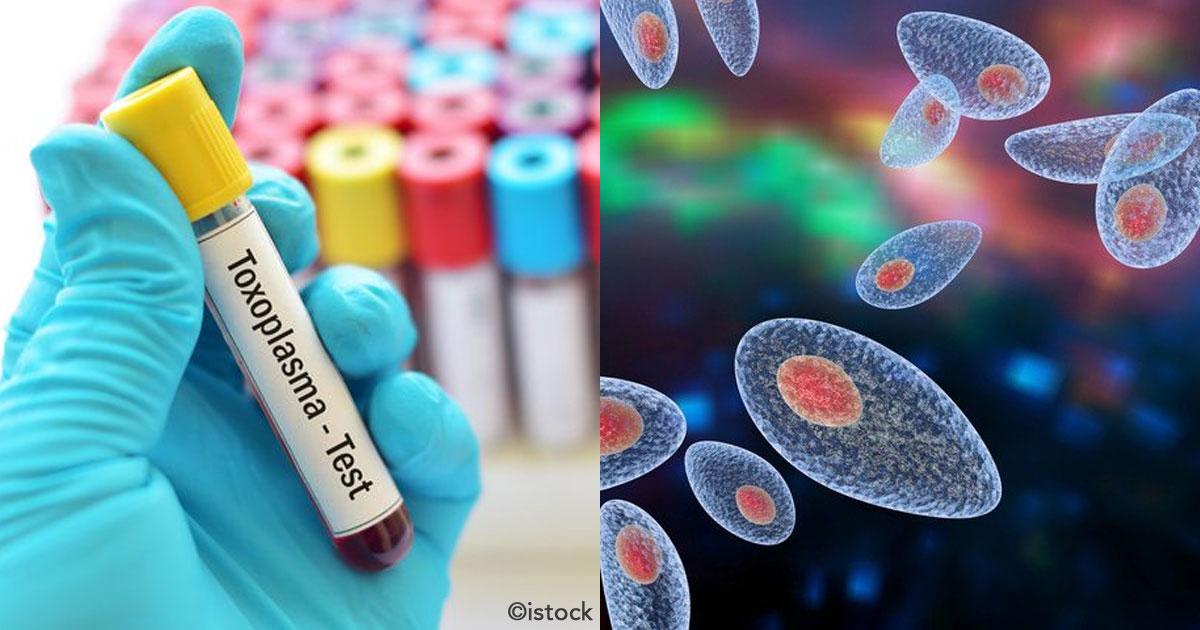 untitled 1 87.jpg - Toxoplasmosis: una infección más común de lo que imaginas