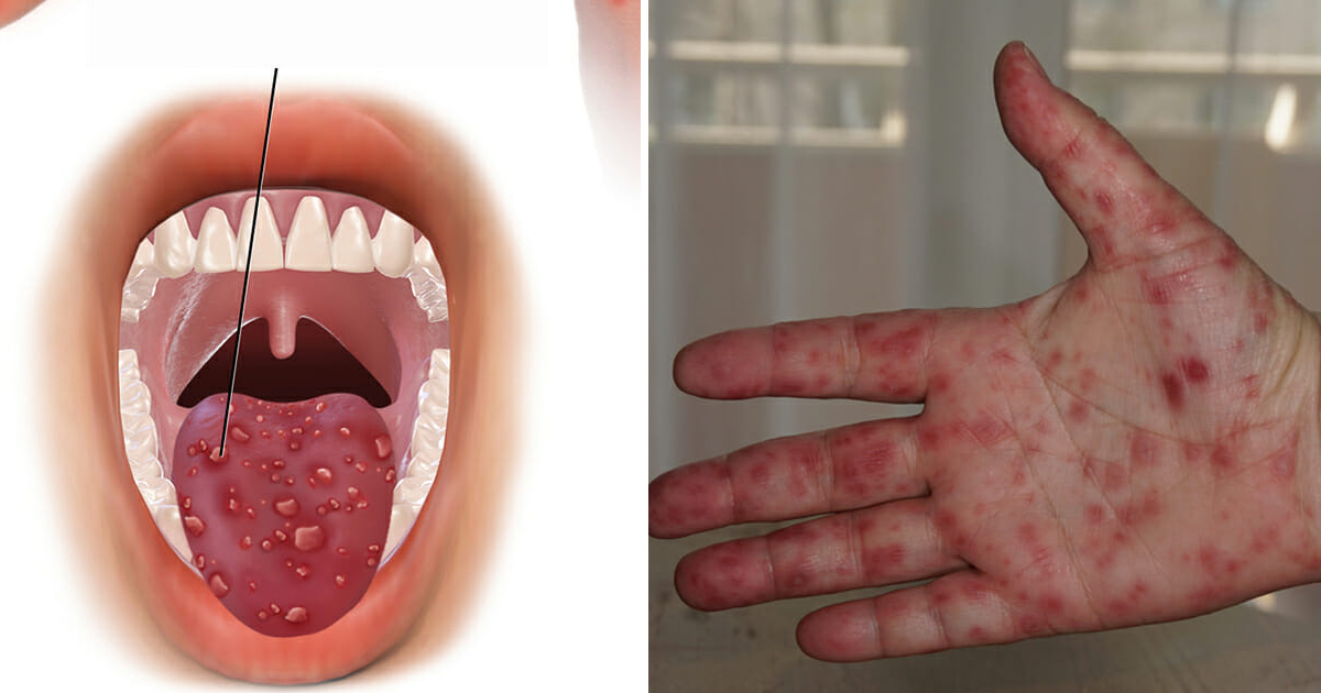 New Disease Is Spreading Out In Virginia, Majorly ...