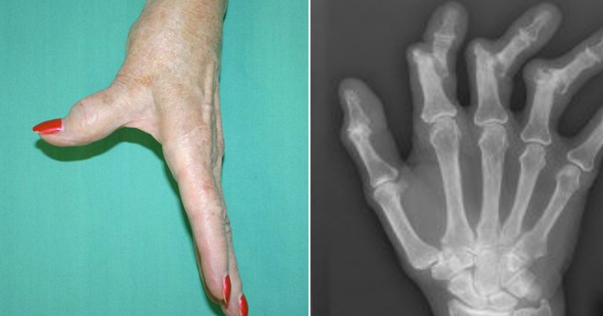 arthritis.jpg - 5 Early Signs Of Arthritis People Should Be Aware Of
