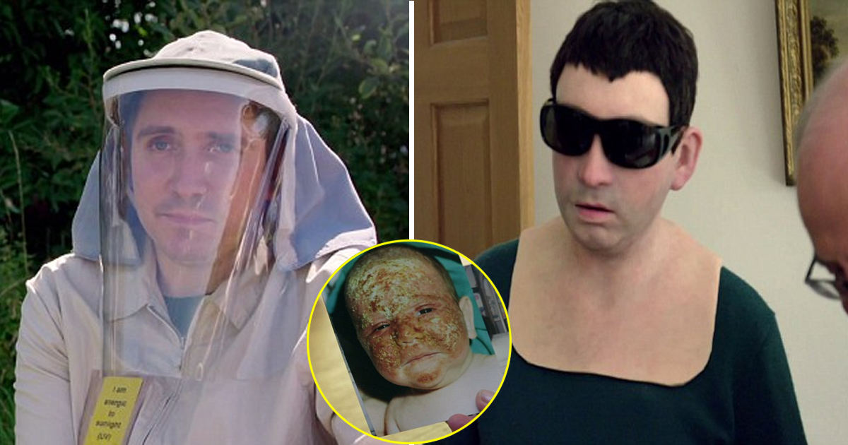 ata 1.jpg - Experts Designed Silicone Mask For Man Allergic To The Sun So That He Could Go Outside