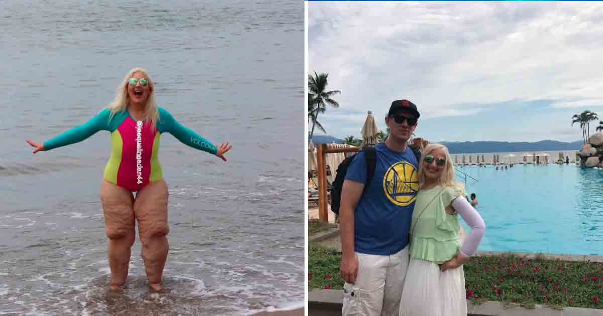tataaa 3.jpg - Woman Responded To Couple Who Mocked Her Legs After She Lost 300 Pounds