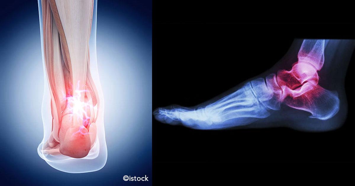 untitled 1 44.jpg - 11 razones por las cuales duelen los pies