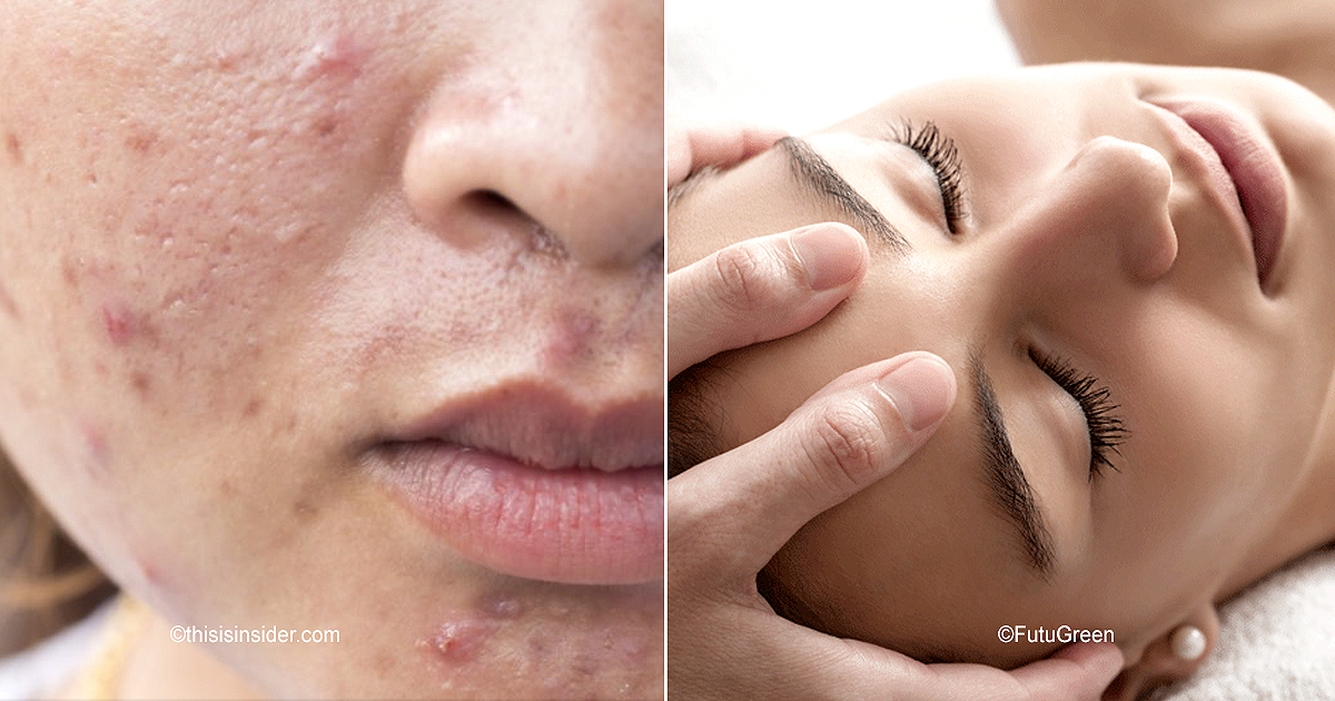 cover22.jpg - Evita el acné con este eficaz automasaje facial de 4 pasos