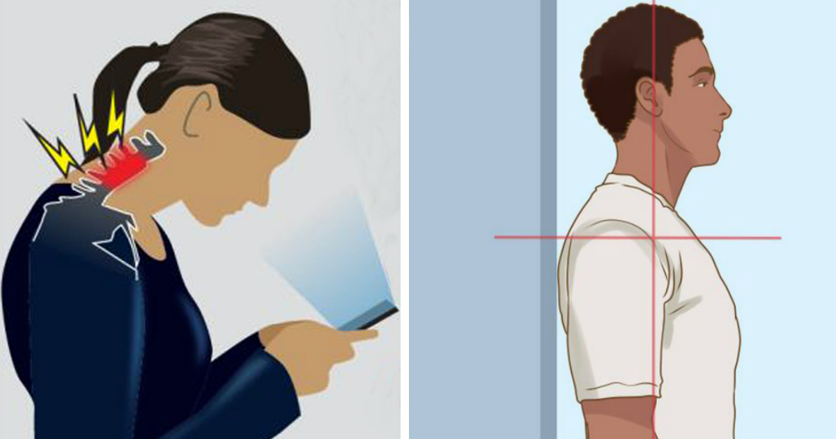 dowagers hump.jpg - What Is Dowager's Hump and How to Fix It (It's Not Only About Your Posture)