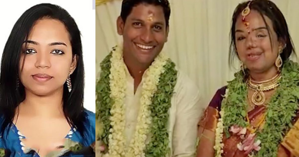 featured image 7.jpg - Indian Man Proposes To His Girlfriend After Her Face Gets Disfigured In Accident