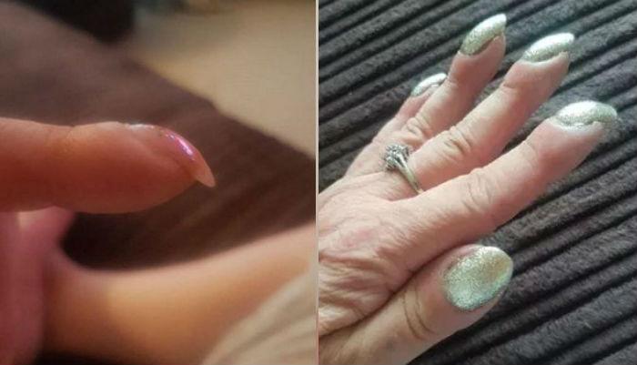nail.jpg - 両親の「爪の形」が曲がっていたら、直ちに「病院」に行かなければならない!!