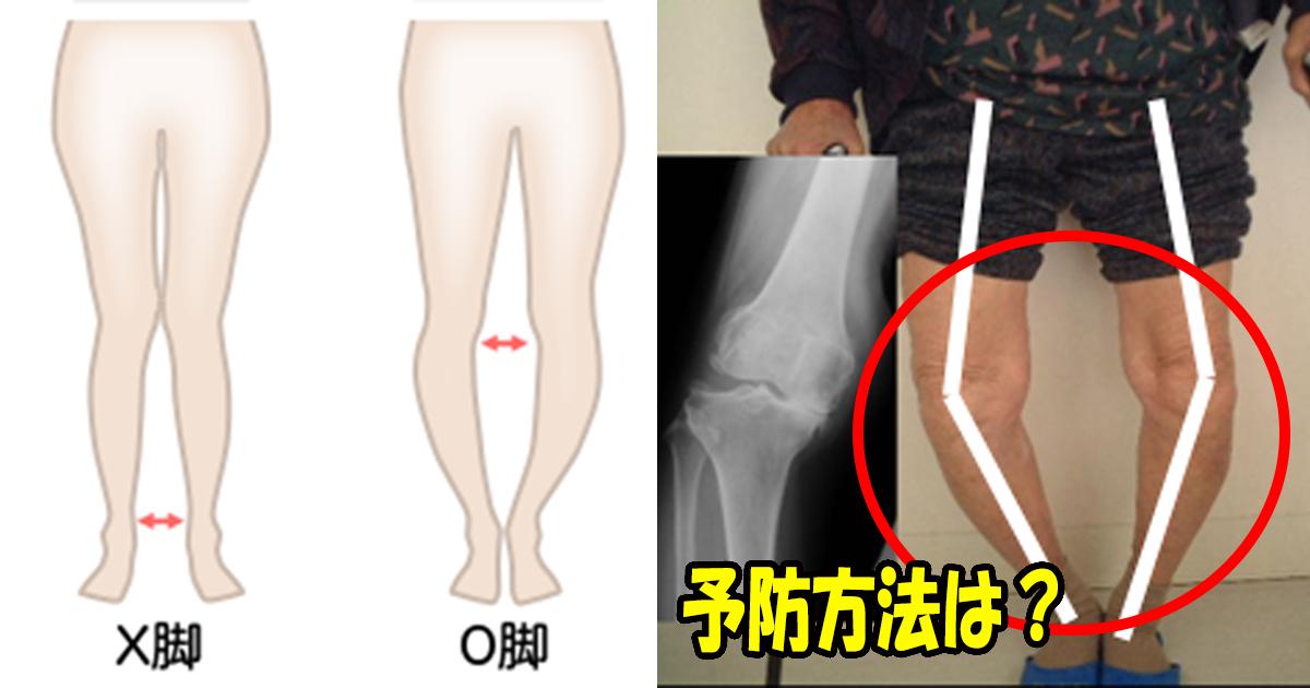 prevent.jpg - 変形性膝関節症を予防はウォーキングが最も効果的だった?!