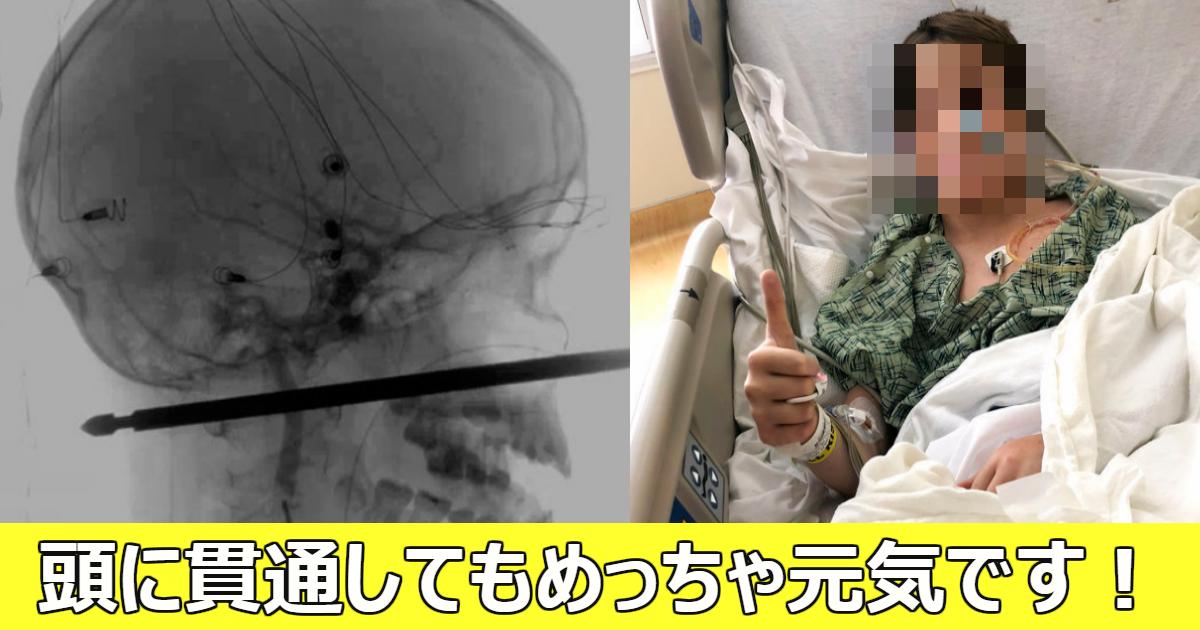 kantu.png - 木から転落し金串が少年の顔を貫通したものの奇跡的に助かった!
