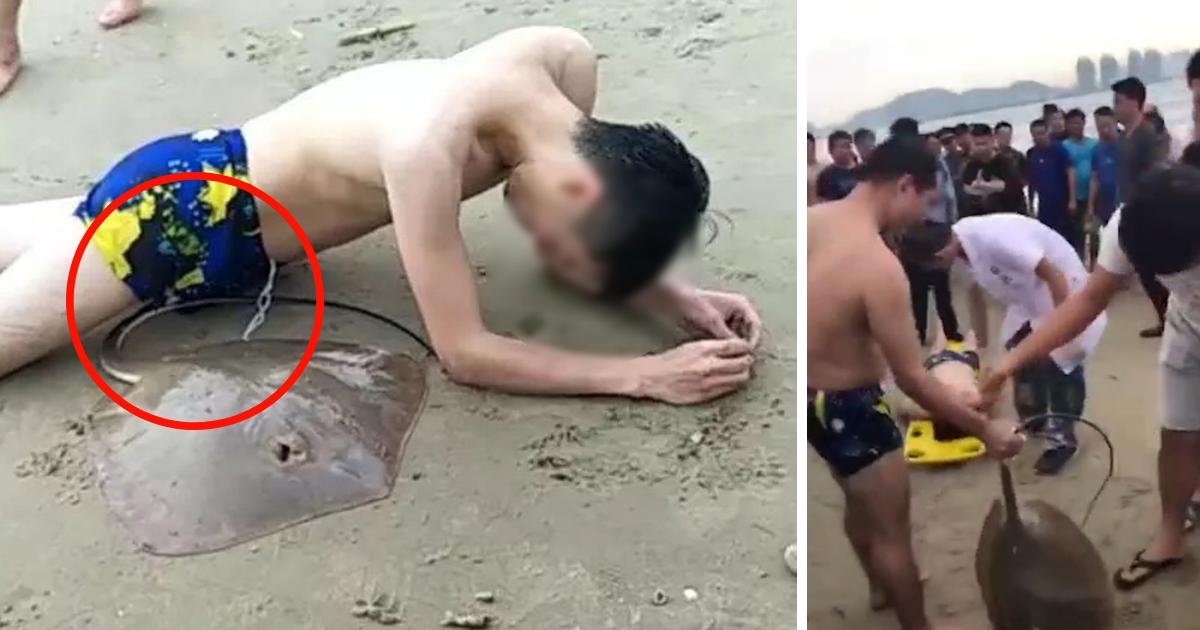 untitled design 18.png - Arraia pica menino em seus genitais enquanto ele nadava no mar