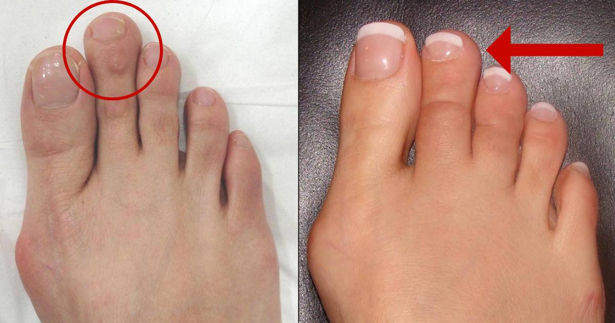toe5.png - El acortamiento del dedo del pie ahora es una cosa y en realidad es más común de lo que piensas