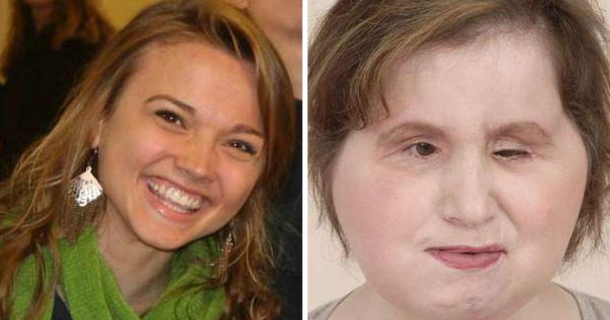 untitled design 75.png - Menina de 22 anos passa por transplante de face após tentativa de suicídio falhar