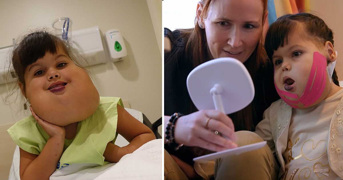dfdf.jpg - Young Girl Underwent 14-Hour Operation To Have Her Facial Tumor Removed