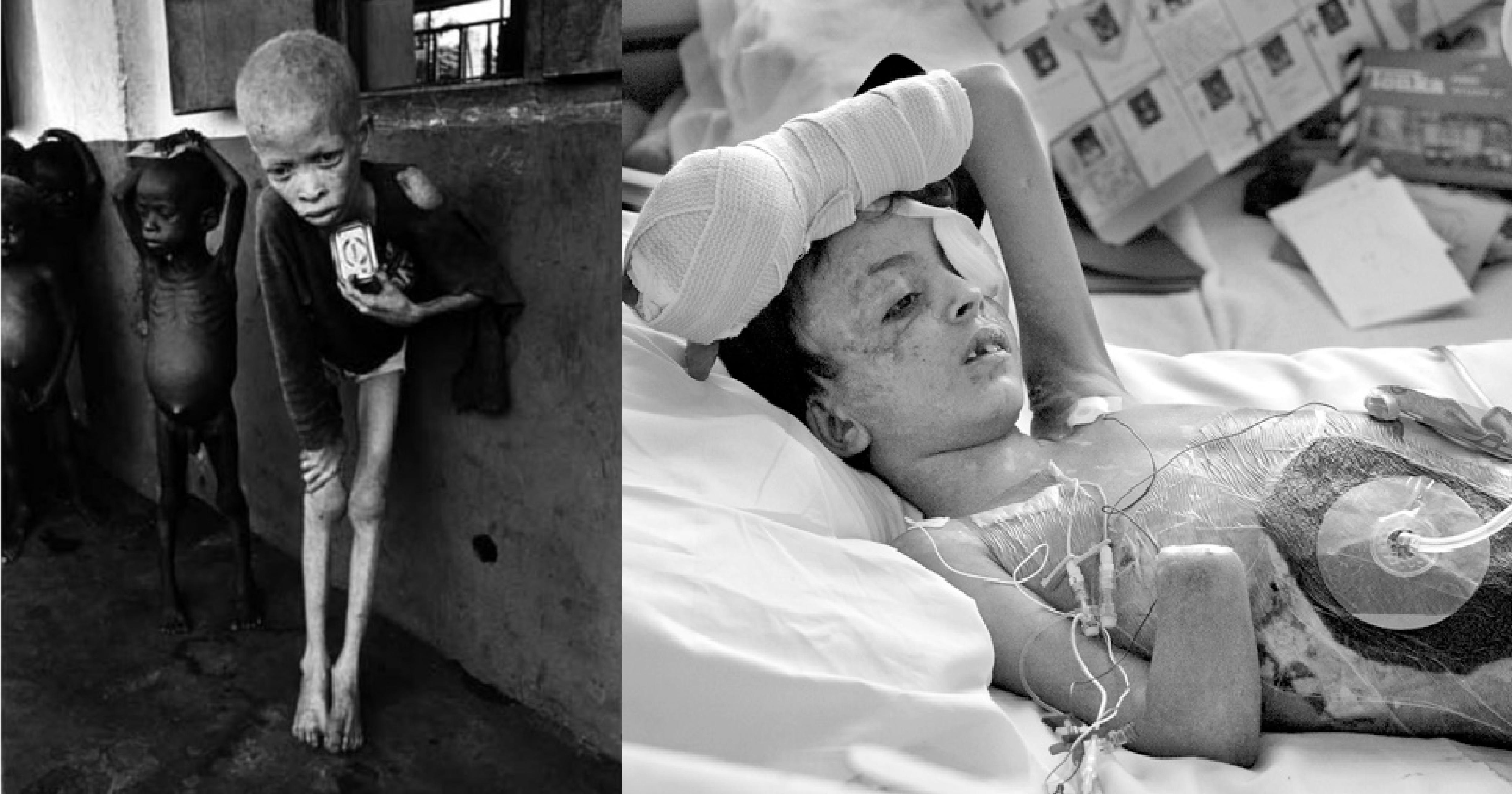 e5b081e99da2 e5b7a5e4bd9ce58d80e59f9f 1 9.png - 請小心服用...無情戰火、飢荒肆虐,這12張照片揭露人類歷史最黑暗的一頁