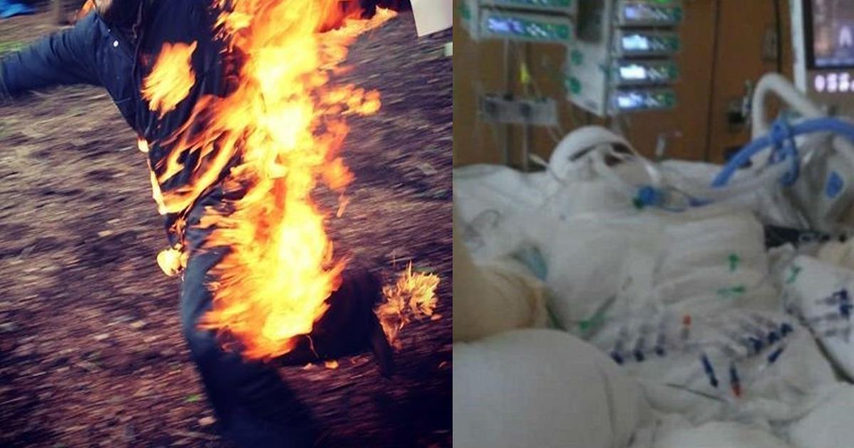 firethemselves.jpg - SNSで「いいね!」がほしくて体に自ら火をつけた「全身火傷」少女