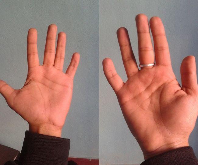 hand.jpg - 20 Pessoas que possuem condições únicas e raras