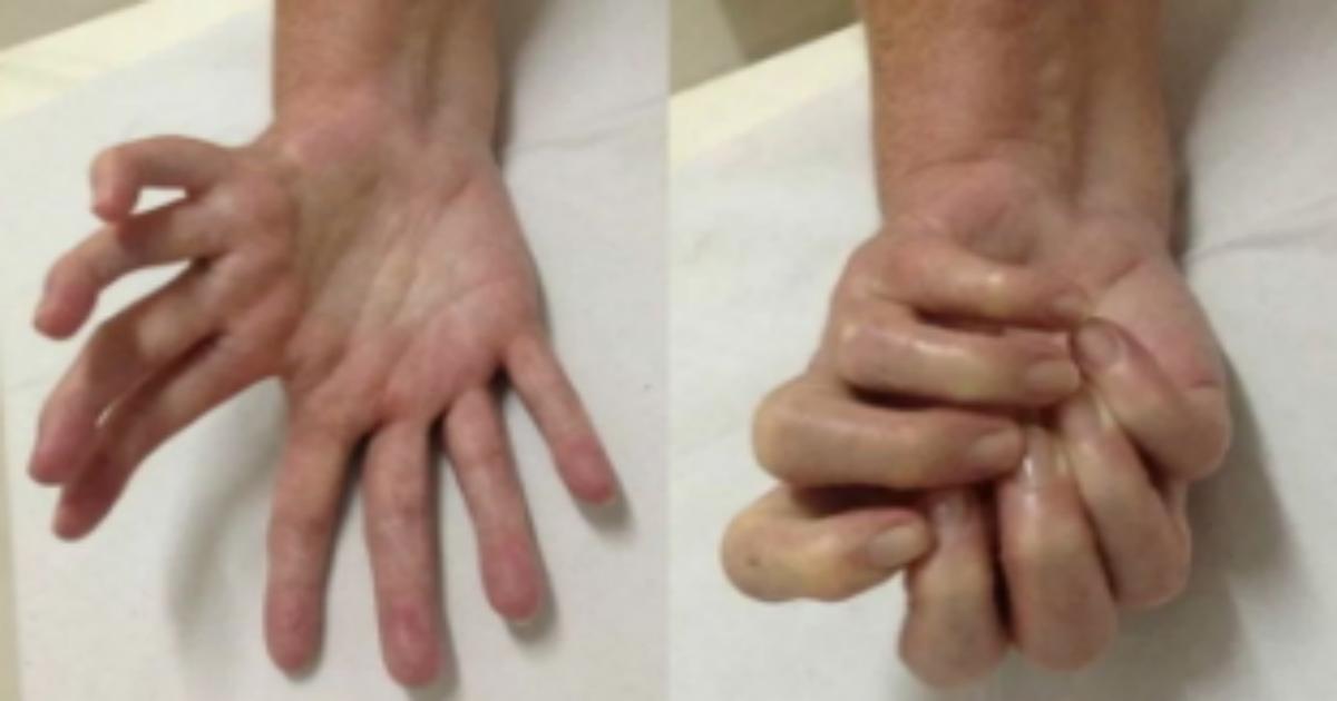 kibyou.png - 世界で100人もいないとされる奇病?8本の手を持つ男性現る
