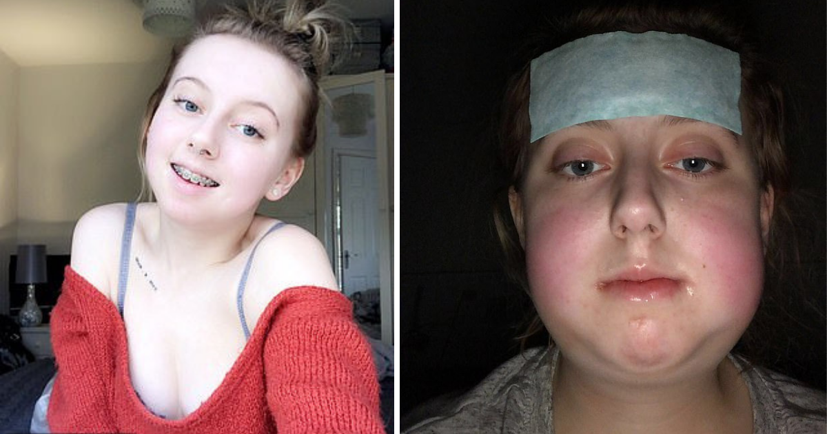 d1 11.png - Teenager Undergoes Life-Changing Corrective Surgery After Suffering Years of Torment From Bullies